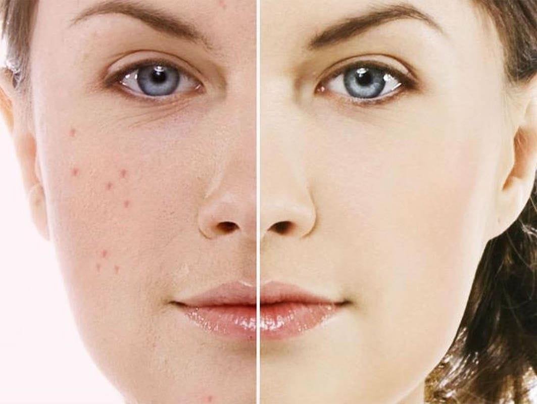 Дієві способи позбавлення від рубців на обличчі