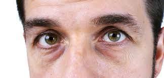 Як забрати синяки під очима 1