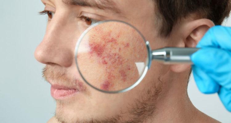 Як очистити шкіру обличчя?